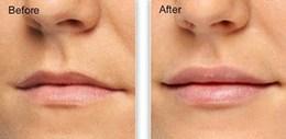filler-lip-augmentation