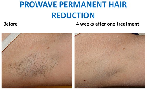 prowave-hair-removal