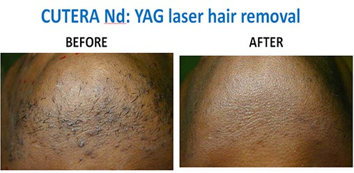 YAG-hair-removal