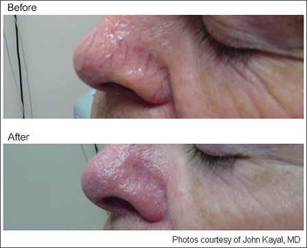 face-vein-removal