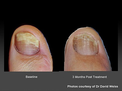 laser-nail-fungal-treatment